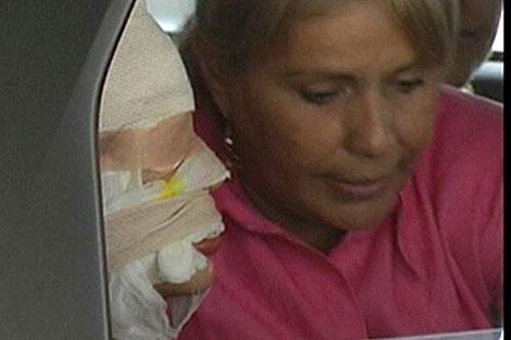 La reina de la belleza colombiana quemada con ácido sale